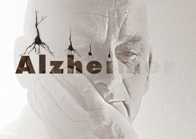 Alzheimer.02