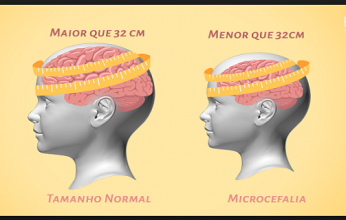 microcefalia-346x220.png
