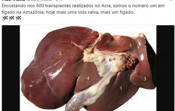 transplante-346x220.png