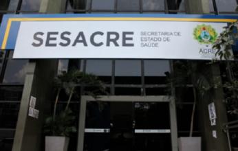 sesacre-346x220.png